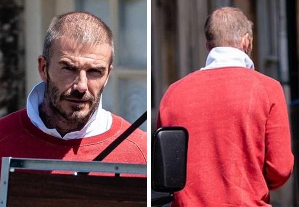 Fotot shqetësuese / Çfarë i ka ndodhur David Beckham?!