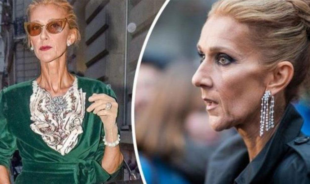 Arsyet pse këngëtarja Celine Dion është dobësuar kaq shumë?