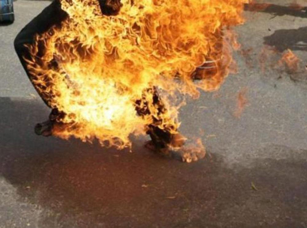 Vetëdigjet me benzinë 30-vjeçarja në Pogradec, pëson djegie të rënda në trup