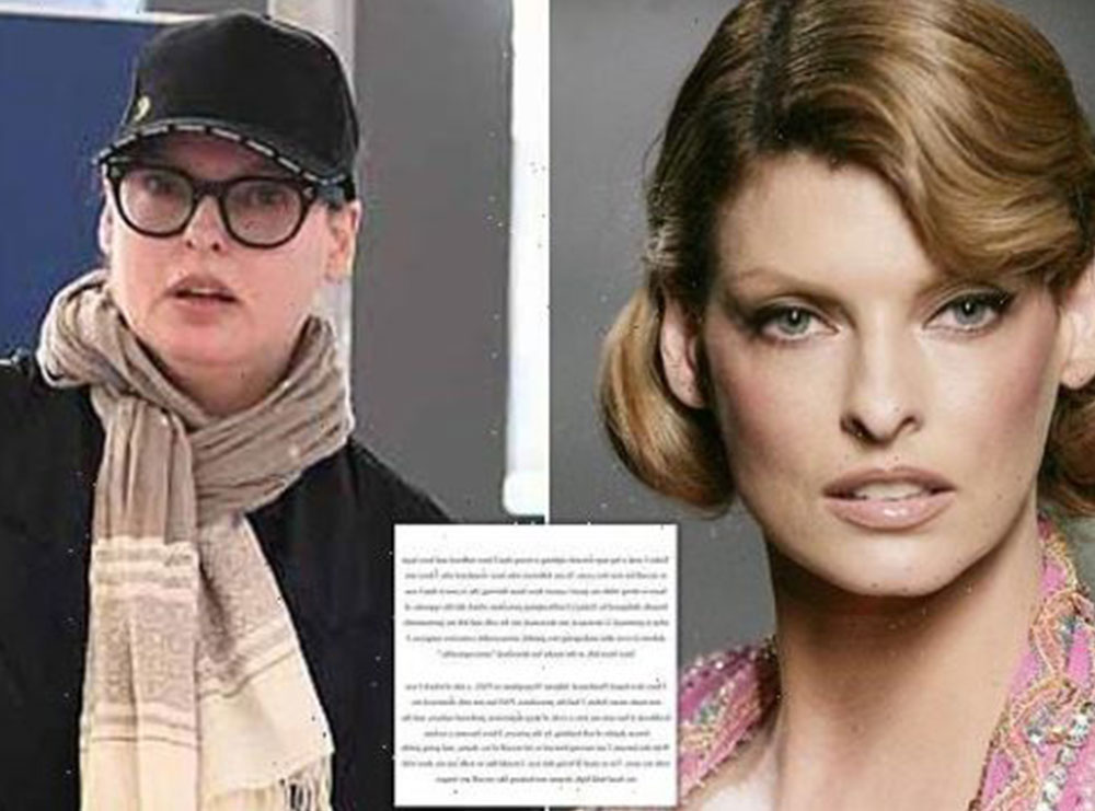 """Jam shpërfytyruar brutalisht""! Supermodelja Linda Evangelista tregon tmerrin pas procedurës kozmetike"